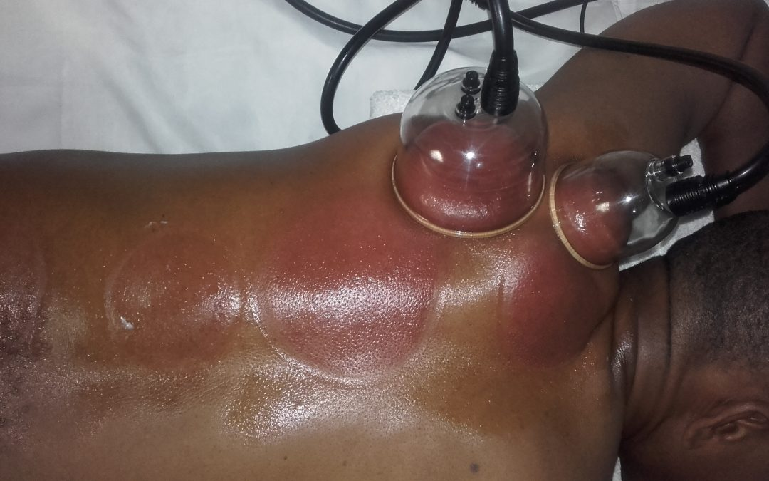 Deep Tissue Cupping Therapy